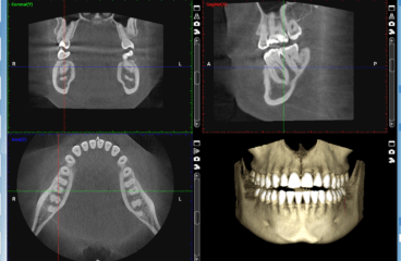 3D Snimanje zuba i digitalni ortopan